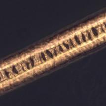 Волосы под микроскопом